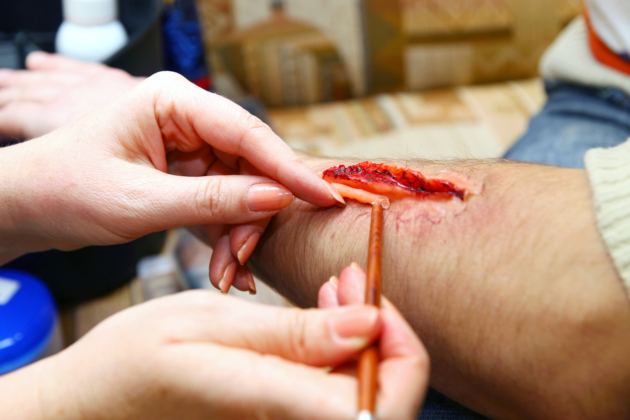 Moulage to create an artificial wound